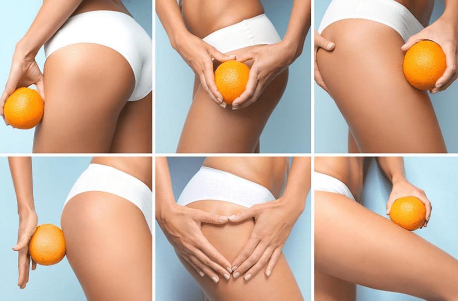 Comment lutter contre la cellulite ?
